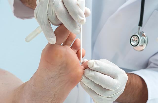 Грибковые заболевания кожи и ногтей - Кожные заболевания ...