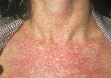 https://xn--80aadc3bb0afph1dp3h.xn--p1ai/allergiya/allergiya-u-rebenka-lechenie-sypi.html   254x360